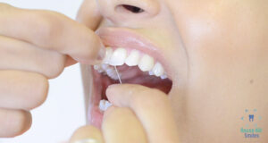 Flossing teeth benefits by dentists in rouse hill