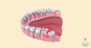 Sydney wisdom teeth removal