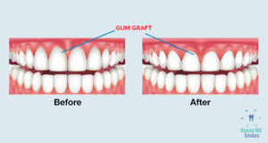 Treating gum recession with grafting