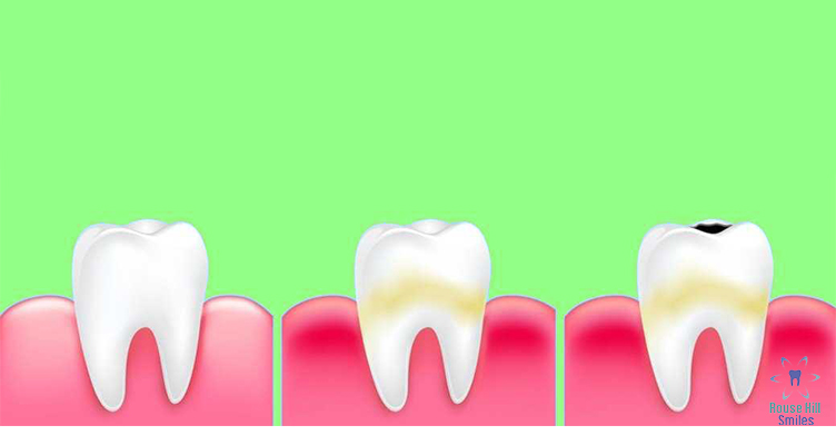 Sugar causing tooth decay