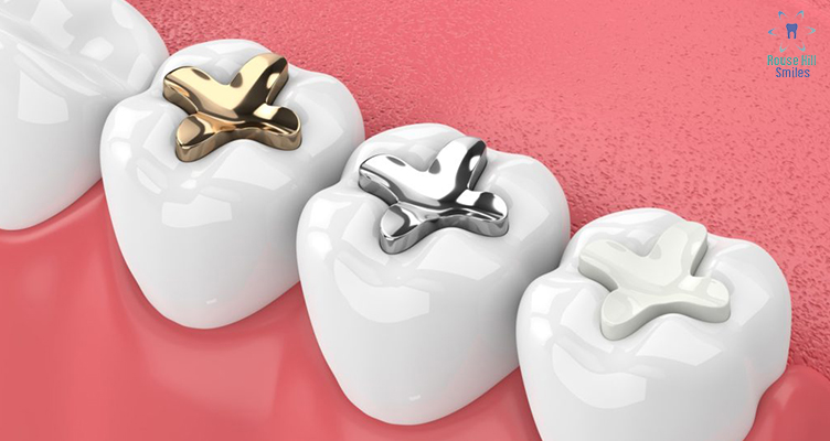 Tooth Fillings at Rouse Hill Smiles Dental Care