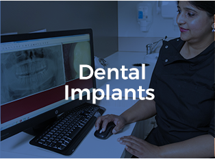Dental Implants Treatment in Rouse Hill Smiles