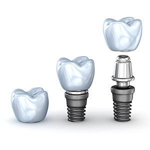 Dental Implants Treatment in Rouse Hill