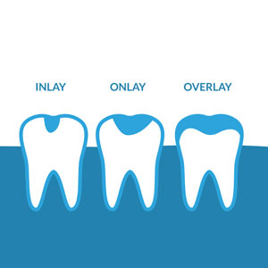 Dental Inlays and Onlays Treatment in Rouse Hill