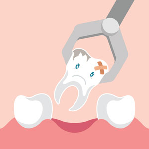 Wisdom Teeth Removal in Rouse Hill