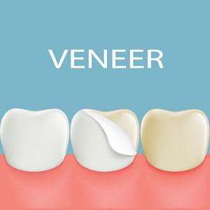 Dental Veneers in Rouse Hill Smile Dental Care