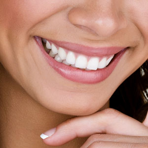 Teeth Whitening in Rouse Hill Smile Dental Care