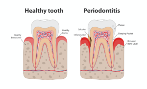 Periodontitis explained by Rouse Hill Smiles Dental Care