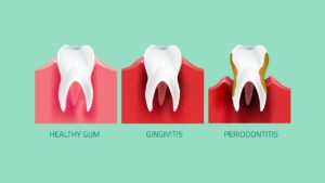 Gum disease by Rouse Hill Smiles Dental Care