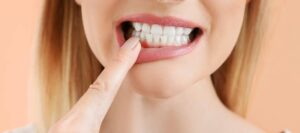 Gum disease explained by Rouse Hill Smiles Dental Care