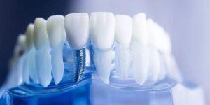 How it looks like - Tooth Implants