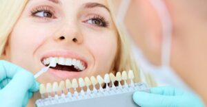Guidelines for teeth whitening