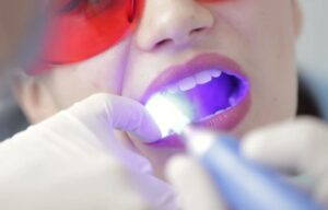 How teeth whitening is done?