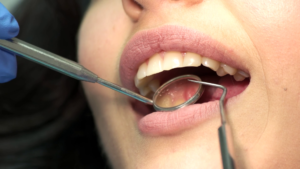 Tooth Decay | Rouse Hill Smiles Dental Care